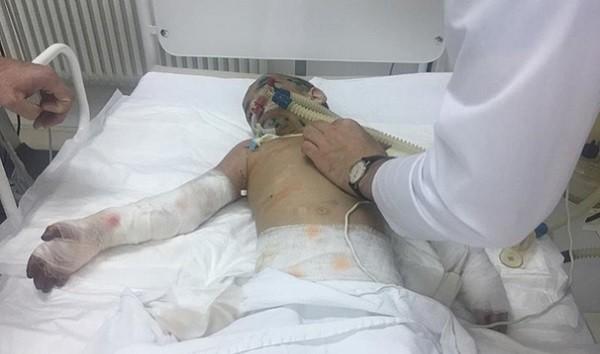 Пострадавшая от избиений девочка