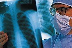 В России найден способ остановить рак легких