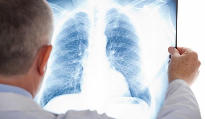 Ученые России придумали сверхчувствительный быстрый тест на туберкулез.