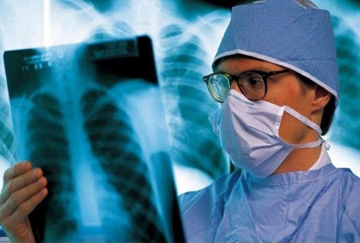 Туберкулезная палочка опасно эволюционирует— Ученые