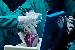 В России хотят упростить донорство органов