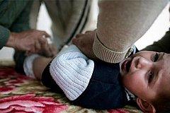 Домашнее обрезание привело к коме двухлетнего мальчика